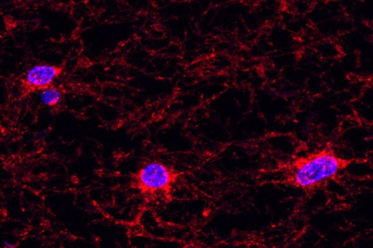 oligodendrocyte brain cells viewed through a microscope