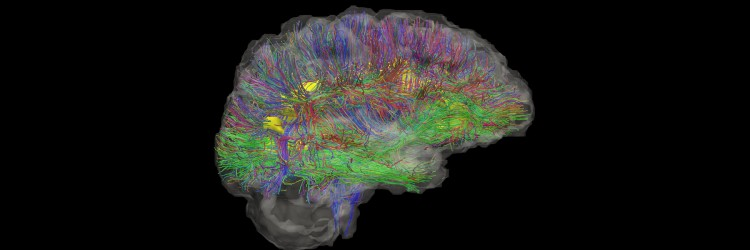 brain imaging showing white matter tracts